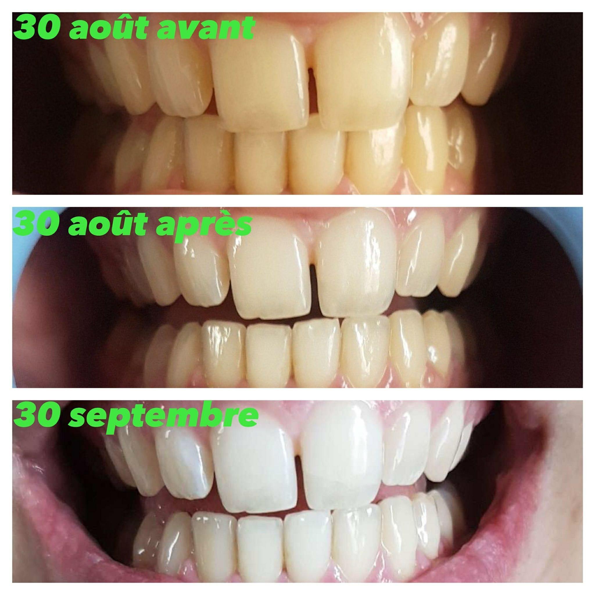 blanchiment des dents combien de temps